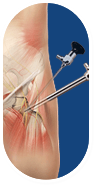 Anterior Total Hip Replacement for AVN Image